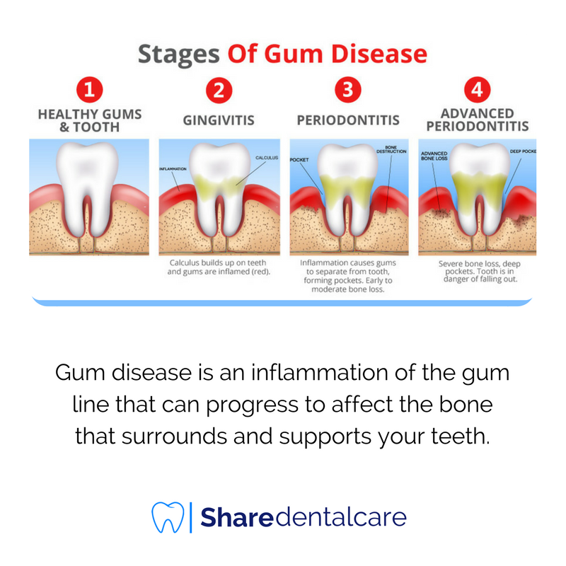 periodontal disease affects essay Thus, if one is an identical (monozygous) twin, the risk of developing periodontal disease if one`s sibling has had periodontal disease is 28-31 percent vs 8-16 percent for fraternal twins both of these concordance rates are higher than the prevalence of periodontal disease among twins (5 percent) and among non-twin spouses (4 percent.