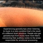 Did you know: experiencing #Goosebumps when listening to #music is a rare condition that's the result of a different brain structure. People who get goosebumps from music have more fibers connecting their auditory cortex to the areas responsible for emotional processing! 😎