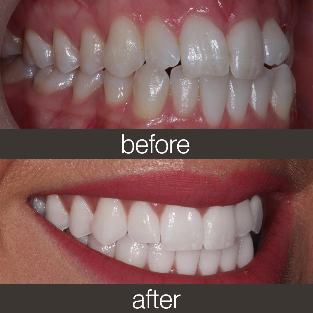 Invisalign On Twitter When You Re Leading With Your Smile Make