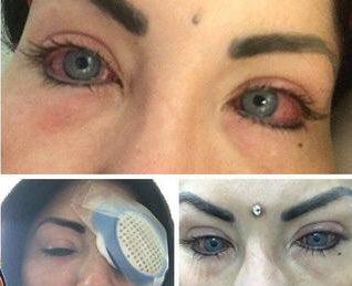 093cd6be1 أصيبت بضعف شديد في البصر بعدما تسببت لها عملية تغيير لون العين بالعديد من  المشاكل ... تكرر التحذير من هذا النوع من العمليات و هذا مثال  حيpic.twitter.com/ ...