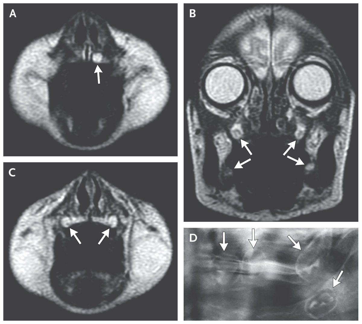 Brief report: prenatal correction of x-linked hypohidrotic