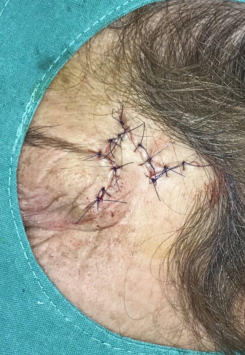 Babe facial flap surgery young video
