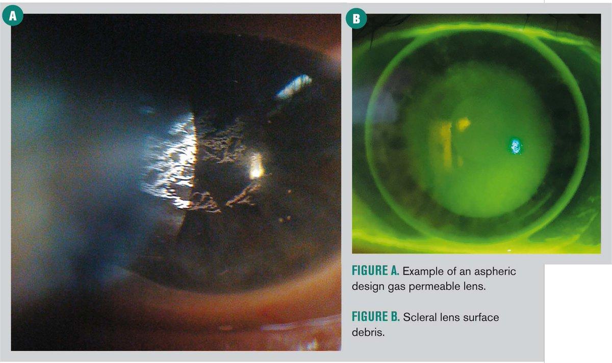 10 tips to enhance scleral contact lens success   http:// optometrytimes.modernmedicine.com/optometrytimes /news/10-tips-enhance-scleral-contact-lens-success?utm_content=bufferd4709&amp;utm_medium=social&amp;utm_source=twitter.com&amp;utm_campaign=buffer &nbsp; …  #contacts #sclerallens #optometry #keratoconus #scleral #lens #eyes<br>http://pic.twitter.com/YhDUeYecaF