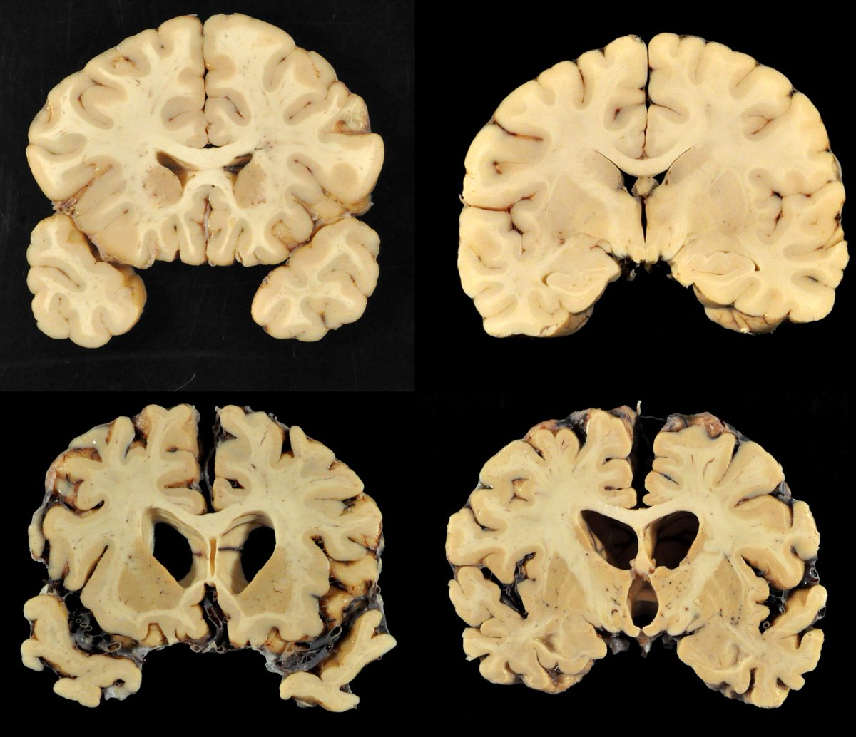 catalog the normal development of the brain Studies of normal brain development reveal critical areas of the brain that develop during late adolescence, and our study shows that heavy cannabis use is associated with damage in those brain regions, said study leader manzar ashtari of the children's hospital of philadelphia.