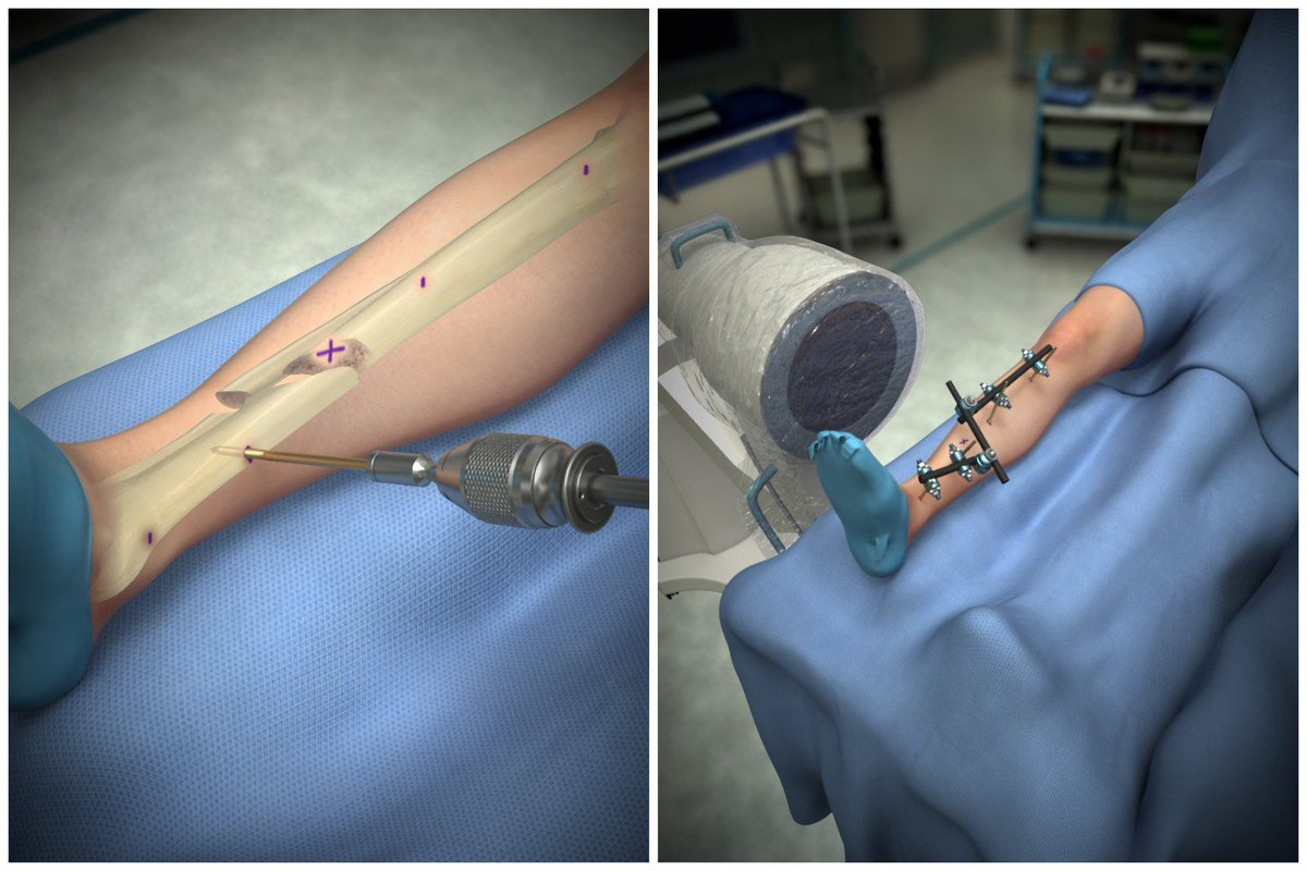 Prepare for your next surgical cases with our new #Orthopaedic procedure release: the AO Tibia Shaft Fractures, Large External Fixator: Modular Frame (Ex-Fix)  https:// lh68.app.link/uACbwV6ygM  &nbsp;  <br>http://pic.twitter.com/iKkpzVlRct