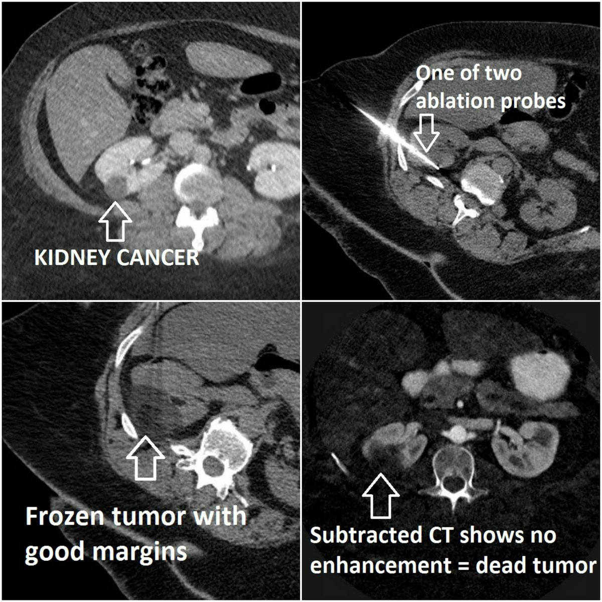 Some more follow up from interventional radiology (#IRad) killing #KidneyCancer  This #patient did not want #surgery so her #cancer was treated w/ a minimally-invasive approach @uab_ir. We were able to make #deadtumor using @BTGIO probes &amp; send the patient home the same day!<br>http://pic.twitter.com/HTvLFUIFLC