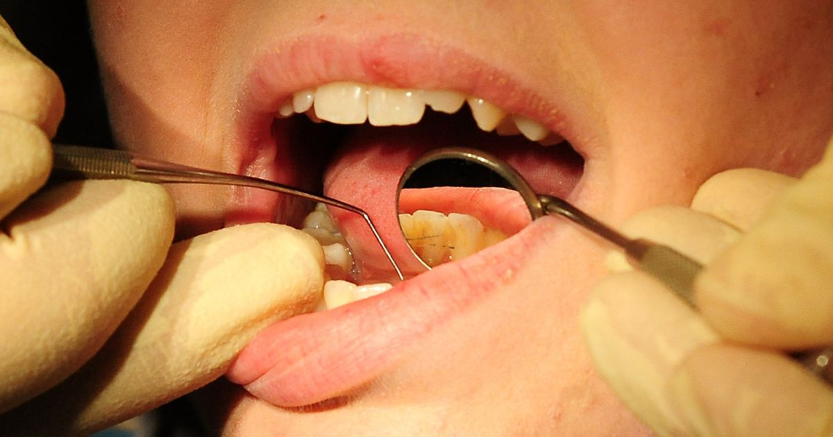 Homeless people are pulling their own teeth out because of a lack of dental care https://t.co/pLi5weRlr4 https://t.co/r7LczfNRVG