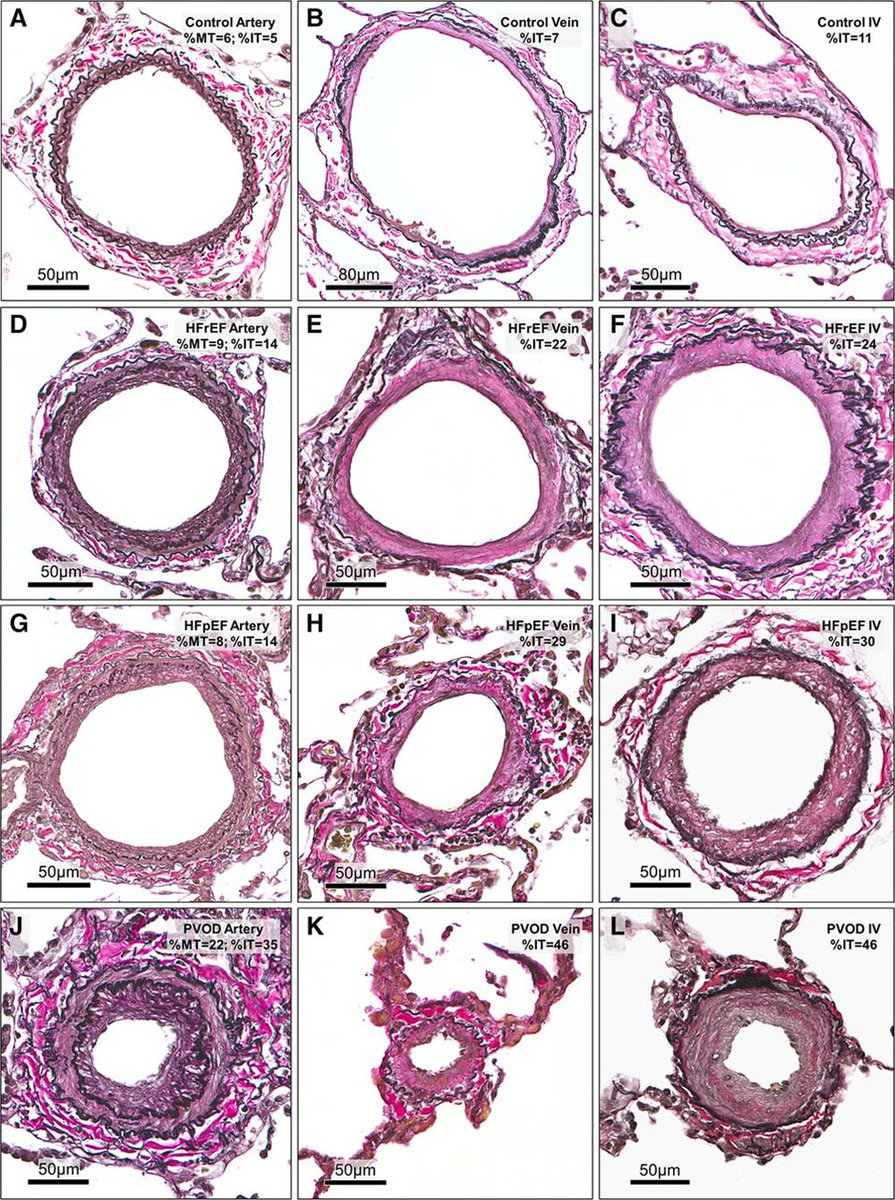 In #CHF, #PH is associated with global pulmonary vascular remodeling but the severity correlates with venous and small vessels intimal thickening. Learn more: http://ow.ly/1YTU30jEIvu  #pulmonaryhypertension