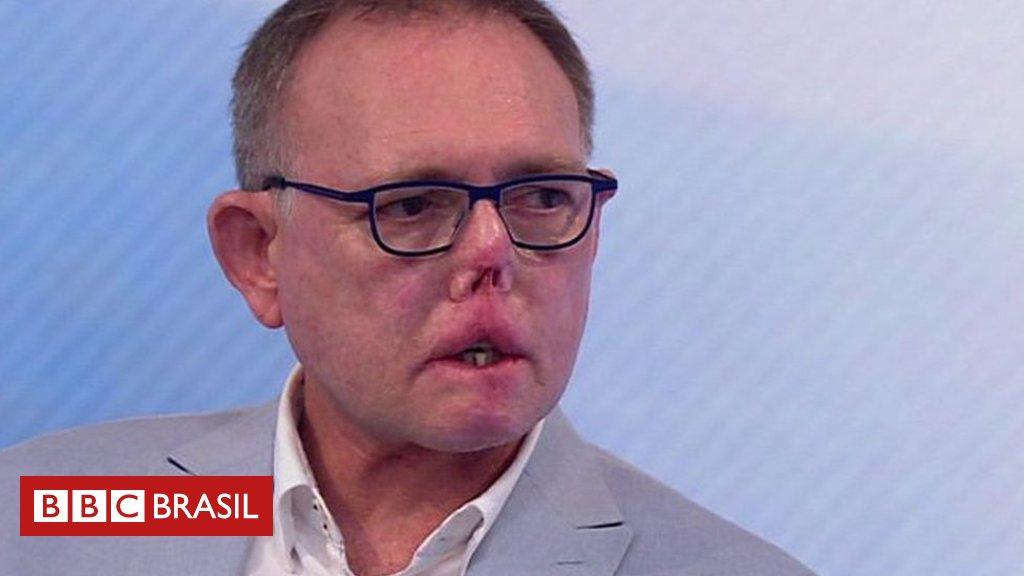 O homem que perdeu pernas, dedos e parte do rosto após arranhão e lambida de seu cão https://t.co/5hQVALPtEL