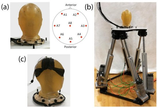 Effects of Cable Sway, Electrode Surface Area and Electrode Mass on #EEG Signal Quality during Motion. Great article and methodology for investigating the impact of #movement artifacts on #mobileEEG data quality.   http://www. mdpi.com/1424-8220/18/4 /1073/htm &nbsp; … <br>http://pic.twitter.com/0kS5V1XX5M