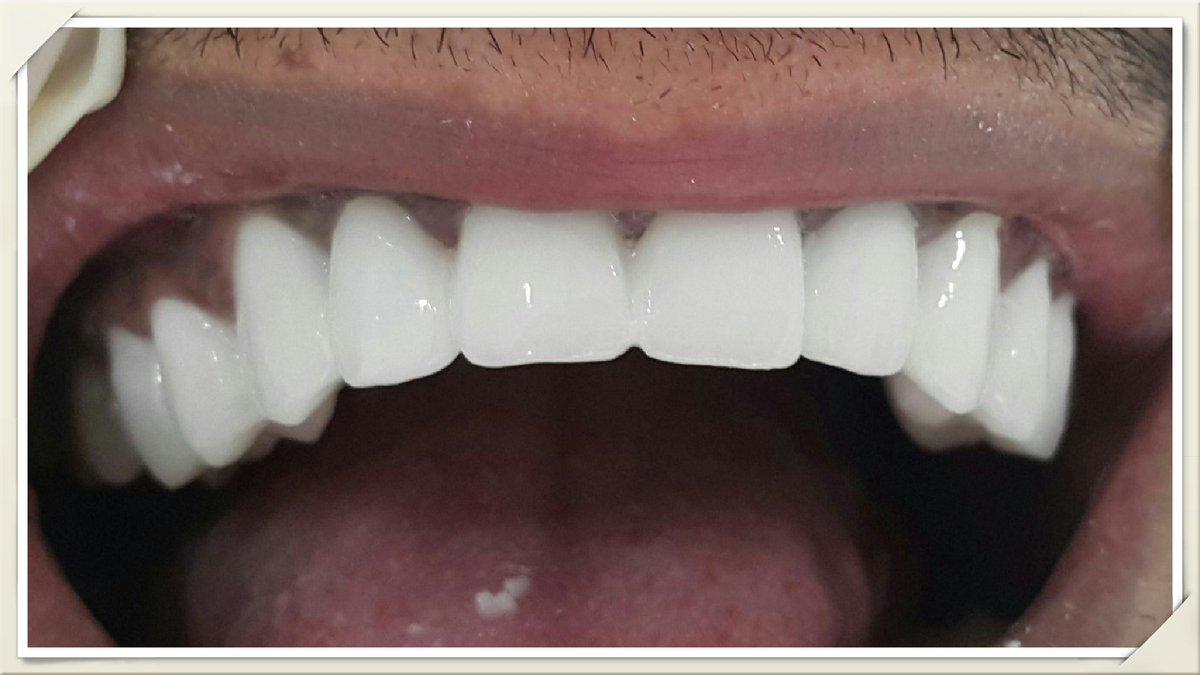 علاج الاسنان الاردن Zozef198 Twitter