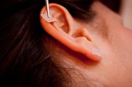 Auriculoterapia👂 é usada no tratamento para chikungunya. A técnica tradicional Chinesa utiliza sementes em alguns pontos na orelha e ajudam a reduzir as dores causadas pela doença. Confira!  https://t.co/s5T768vscb