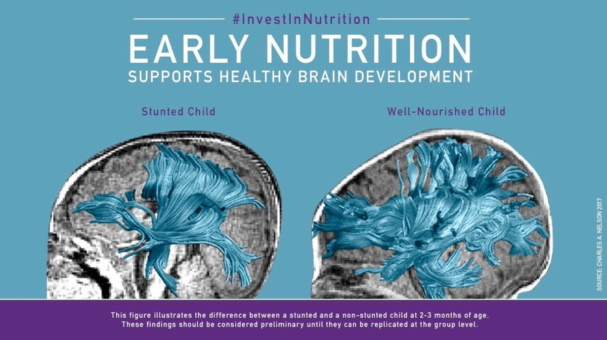 What Poverty Does To Young Brain >> 1 000 Days On Twitter This Is Why It Matters To Investinnutrition