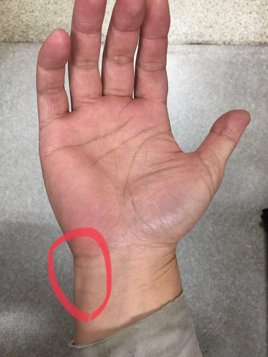 が 痛い 手首