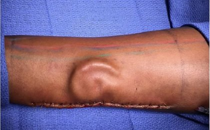 INCREDIBLE! After a soldier lost her left ear in a car crash, Army surgeons were able to grow a new ear in her forearm and transplant it onto her head.  https://t.co/1KoafZQ9NB