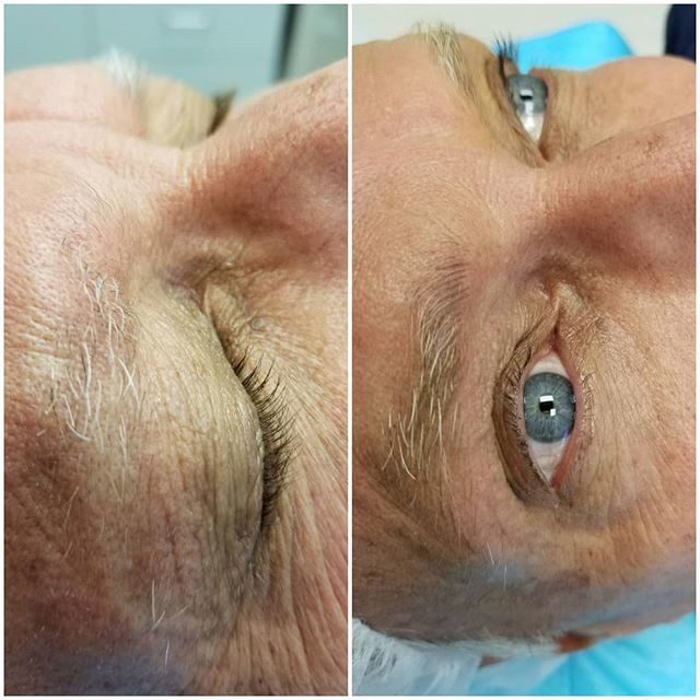 #maneyebrows #manmicorblading #manoverfifty #mensfashion #mens just a little something extra for a man who wants a nice natural looking eyebrow just a few #hairstrokes threw eyebrows.  Looking good!!!! #rejuvantemed_spa #qspaplus https://ift.tt/2jS4oBLpic.twitter.com/VNTy6jOYYN