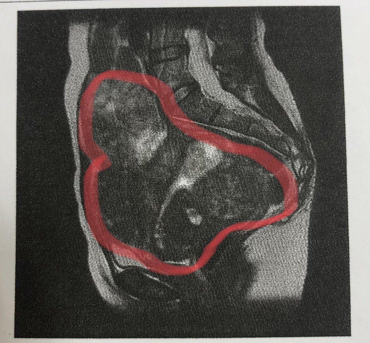 子宮 多発 筋腫 性