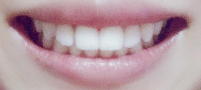 前歯 ギザギザ