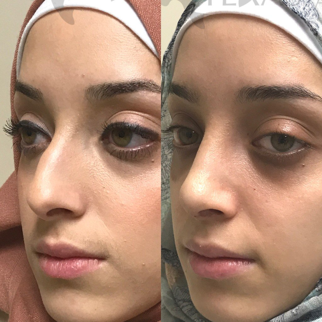 A #rhinoplasty corrected her breathing issues and gave her nose a softer  look. #friscotx #dfw #facialplasticsurgery #plano #dallas #nosejob  #mckinney ...