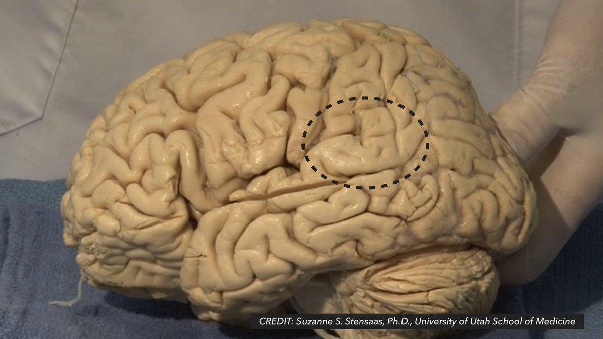 neuronatomy hashtag on Twitter