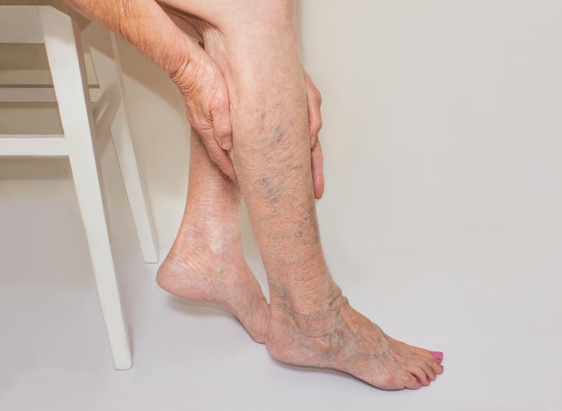 Свадьба, картинки больная нога