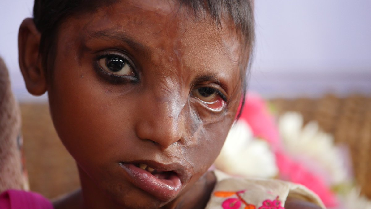 Stop Acid Attacks a Twitter: