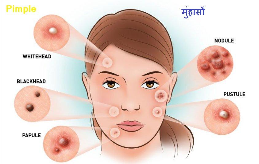Koharr Health LLP on Twitter: