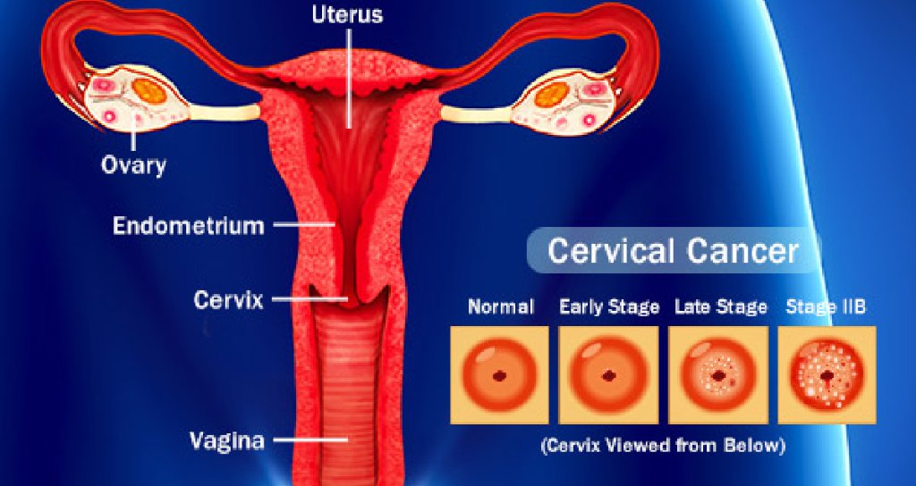 Webmd On Twitter Almost All Cases Of Cervical And Anal Cancer Are Caused By Hpv What You Need To Know Https T Co M5zvdg99j6