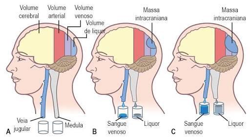 Tinnitus pulsátil de presión intracraneal