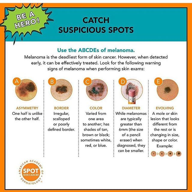 Dr Kavita Mariwalla On Twitter We Encourage You To Know Your Abc S And Learn To Identify Suspicious Spots That Could Turn Out To Be The Deadliest Form Of Skin Cancer Melanoma Boardcertifieddermatologist Aads