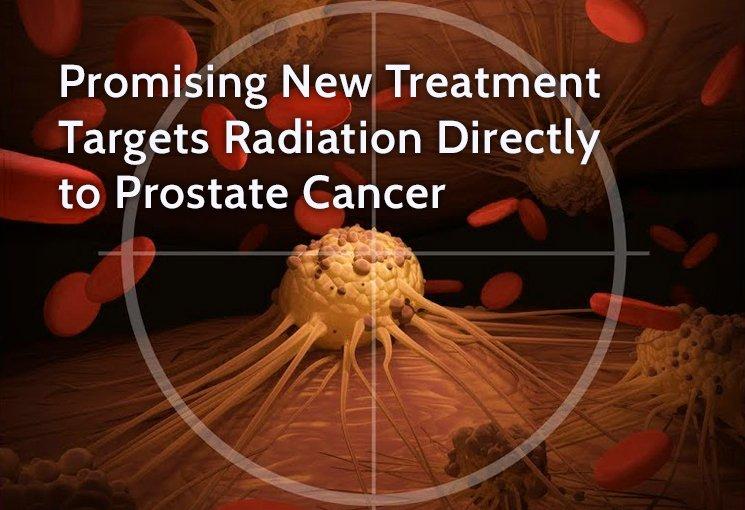 prostata acts