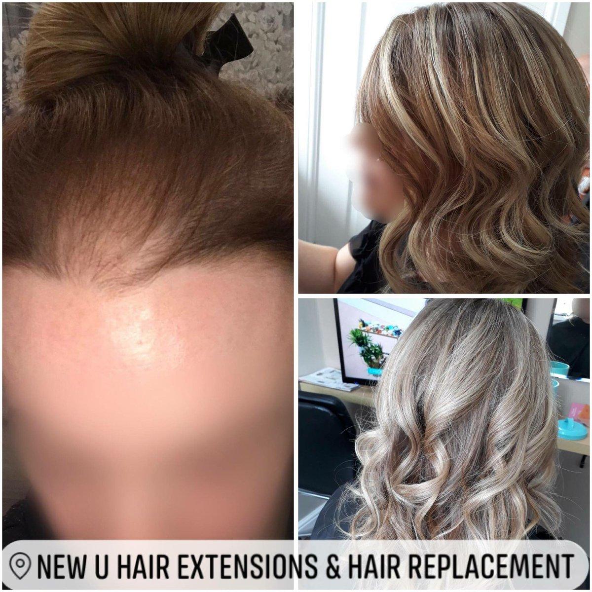 New U Hair Extension Hair Replacement Simonenewu Twitter