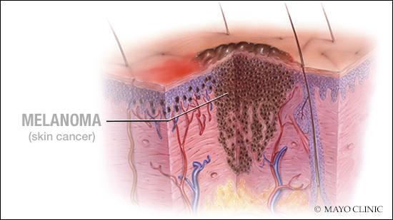 view pancreas and islet transplantation