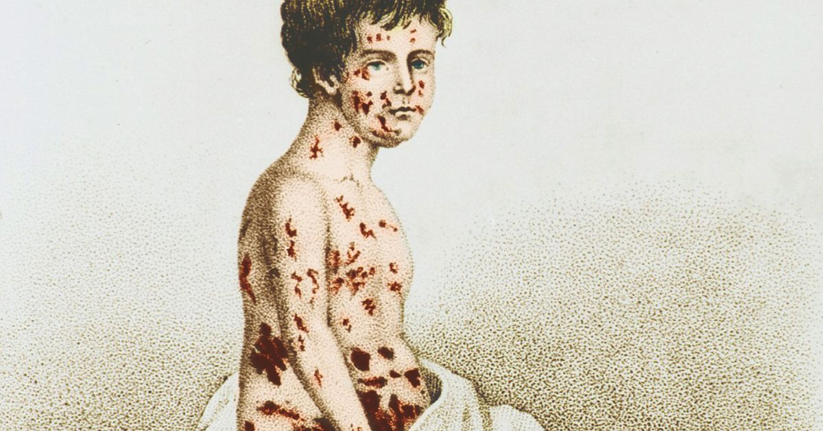 could smallpox become the next biological Various types of biological warfare (bw) have been practiced repeatedly throughout history this has included the use of biological agents (microbes and plants) as.