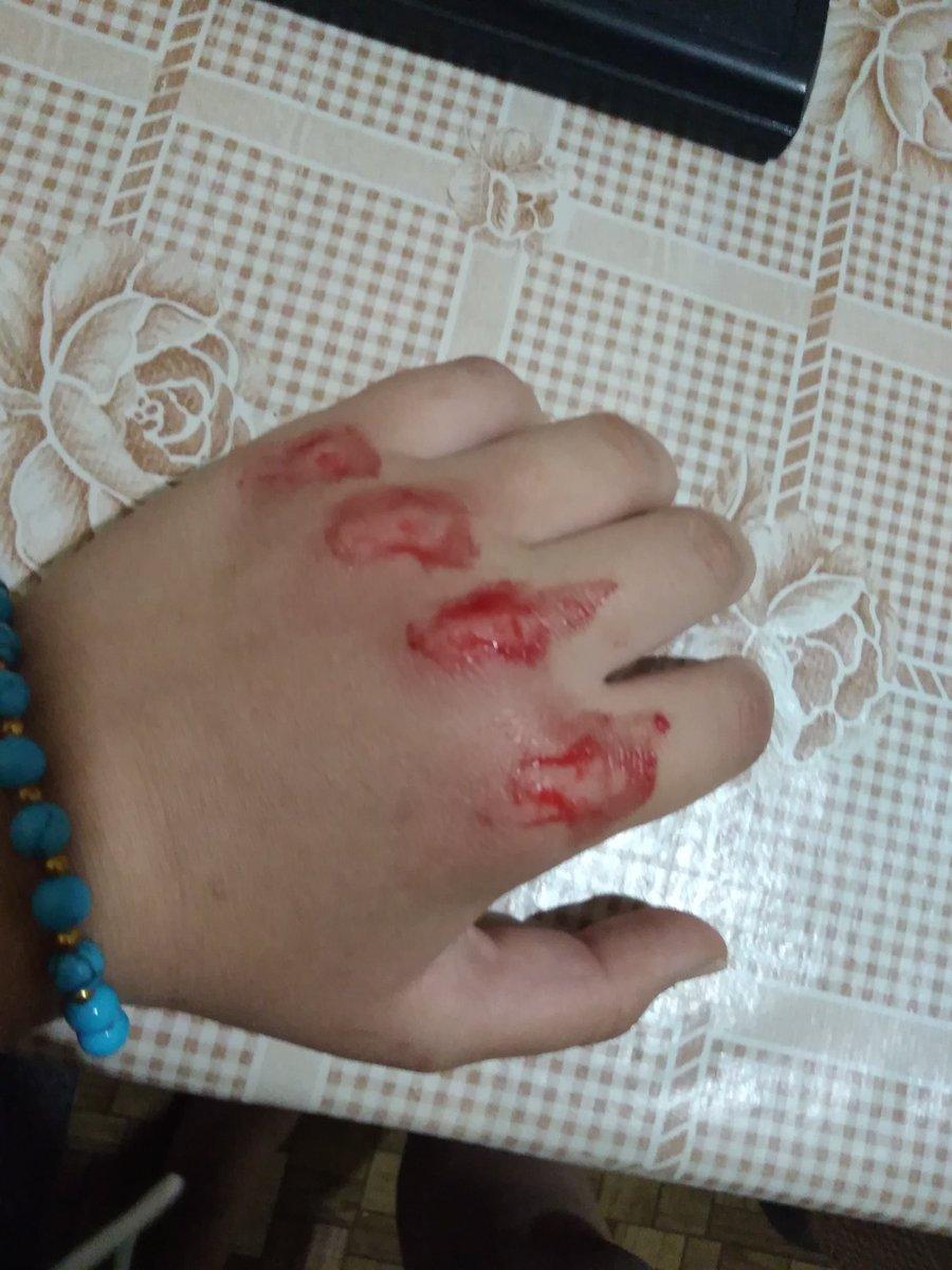 Картинки выбитая рука