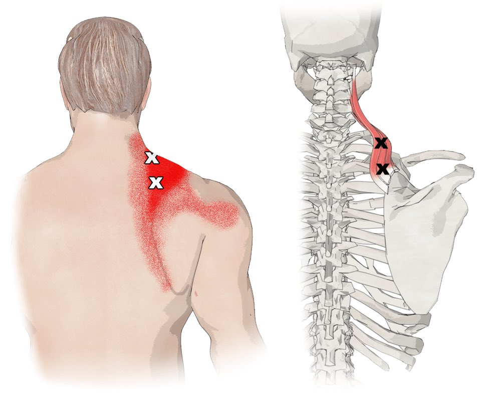 The superficial back muscles are situated underneath the skin and superficial fascia They originate from the vertebral column and attach to the bones of the shoulder