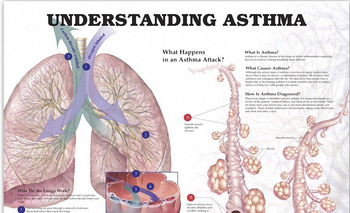 Understanding Asthma Anatomical Chart
