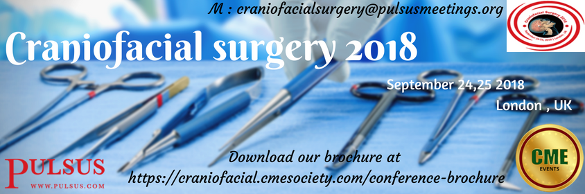 buy Fracture chracteristics of alumninum