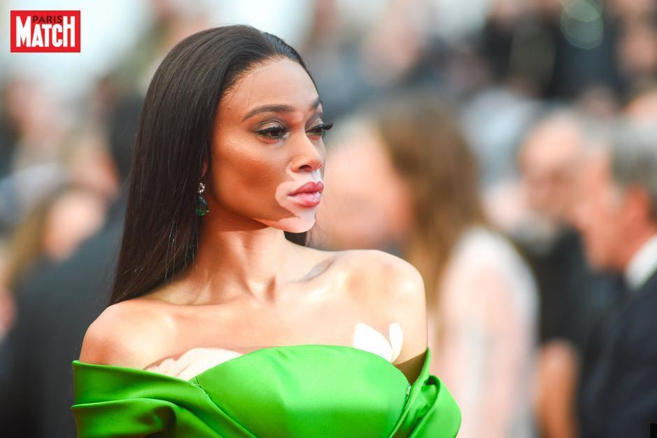 Cannes 2018 : Winnie Harlow fait la différence sur le tapis rouge https://t.co/78g01fnqc5