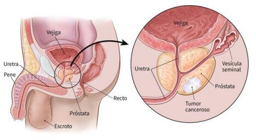 prostata de que se produce