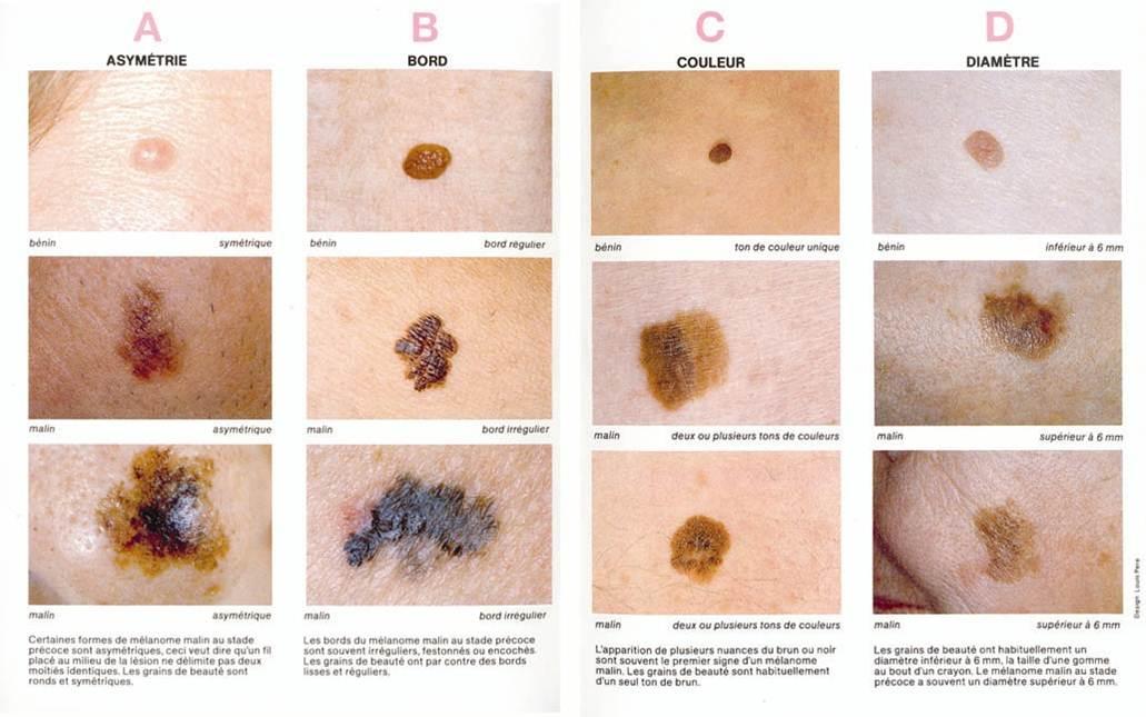 la msa on twitter semaine de pr vention des cancers de la peau le m lanome est le cancer de. Black Bedroom Furniture Sets. Home Design Ideas