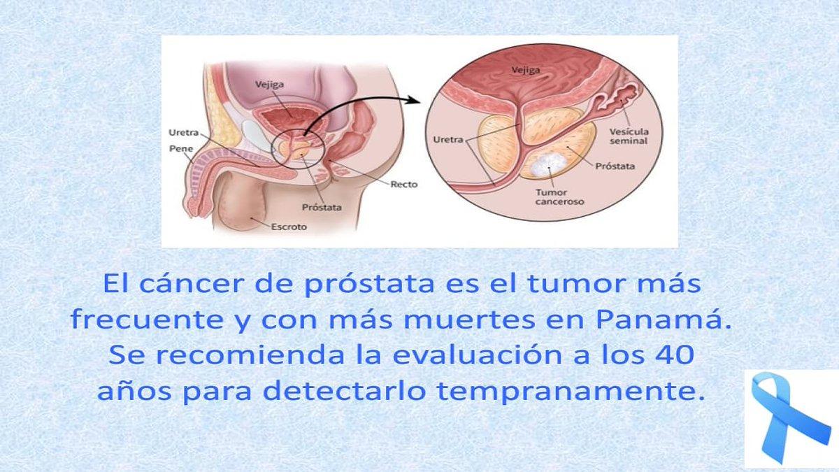 tumore prostata visita urologo