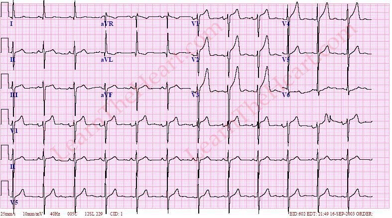 On Twitter Modified Cornell Criteria For LVH On