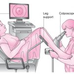 Image for the Tweet beginning: Colposcopy appointment coming up and