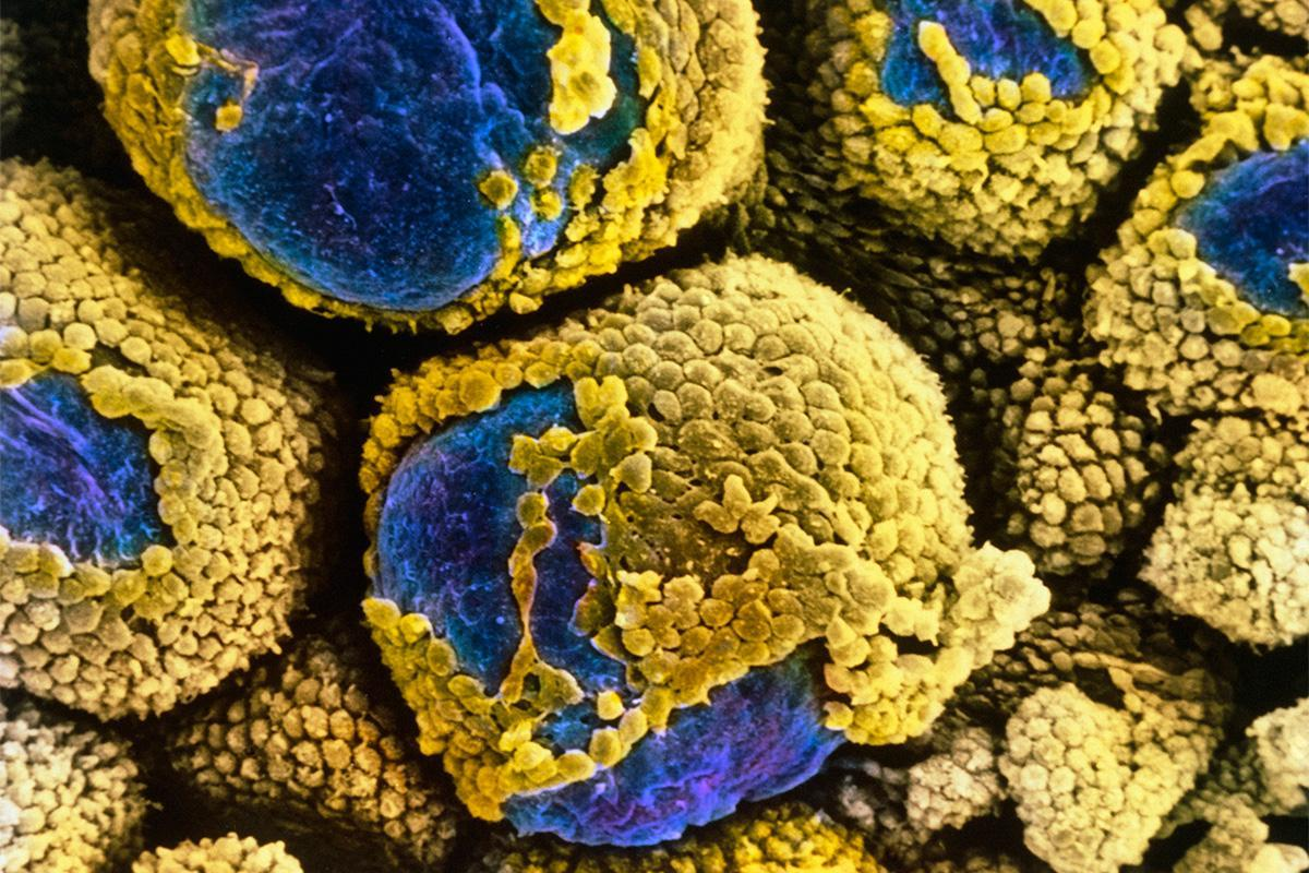 Cause of polycystic ovary syndrome discovered at last https://t.co/xczUEh4qan https://t.co/sONkk2QAge