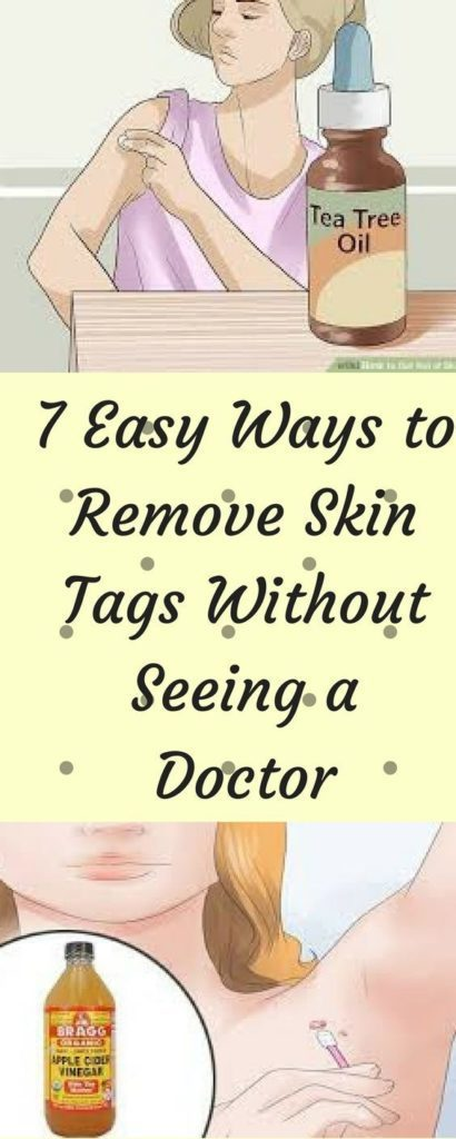 9 Easy Ways to #Remove Skin Tags Without Seeing a #Doctor  Read More:  https:// ift.tt/2H8H0xQ  &nbsp;  <br>http://pic.twitter.com/zuSiFhQwdi