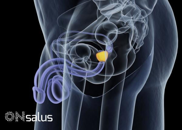 1 stadium der prostatitis behandlung.jpg
