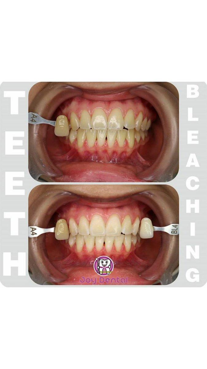 Klinik Gigi Joy Dental Yogyakarta On Twitter Berikut Adalah