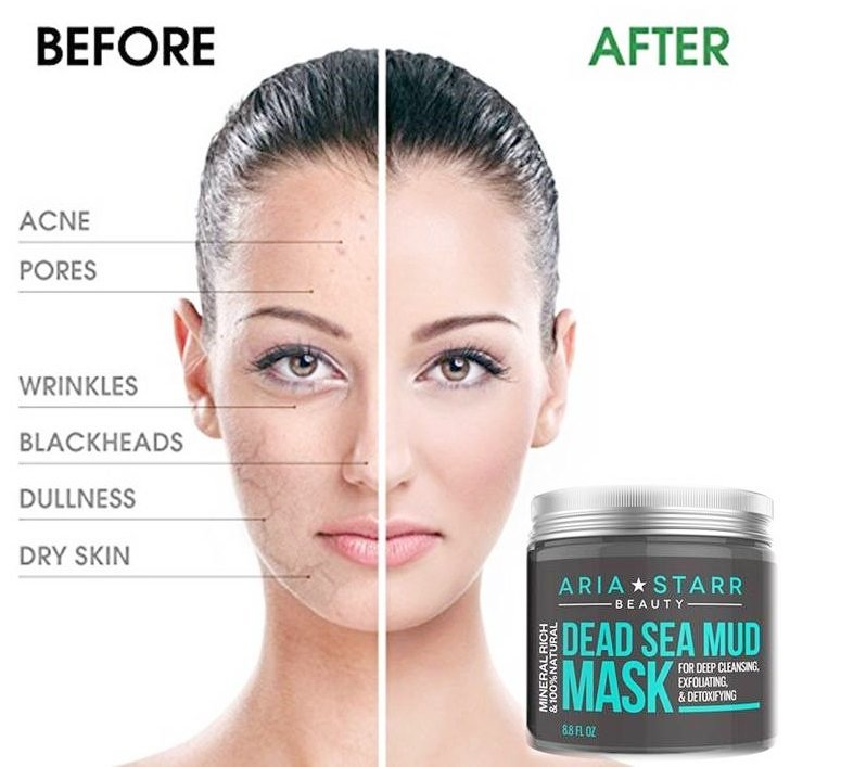... Body - Best Pore Reducer & Minimizer to Help Treat Acne Blackheads & Oily Skin - Tightens Skin for a Visibly Healthier Complexion http://sni.ps/JRV ...