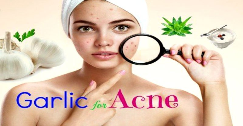 how to get rid of acne with garlic